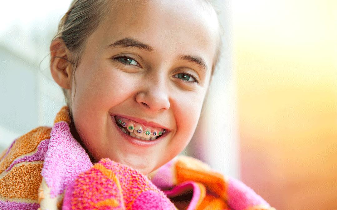 Assicurazione apparecchio denti: come ti protegge da una grande spesa